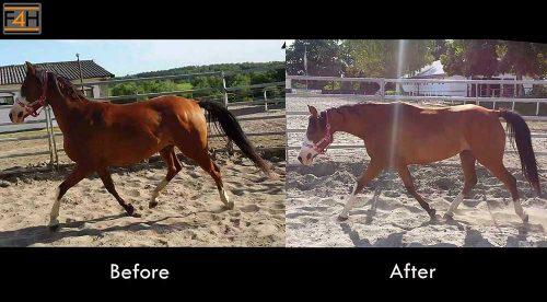 Kinezyterapia - Przed i po